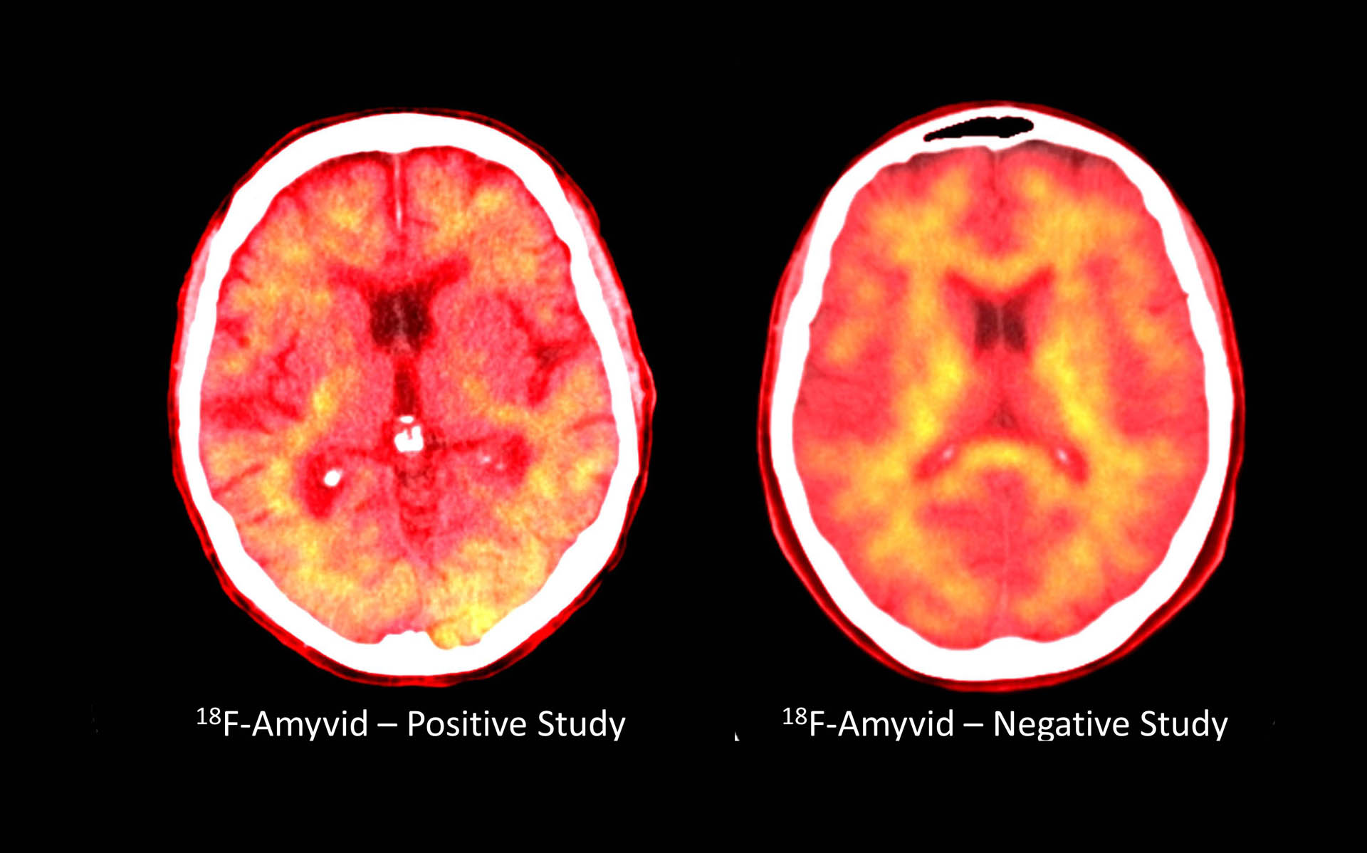 PET Imaging at Center for Imaging Research
